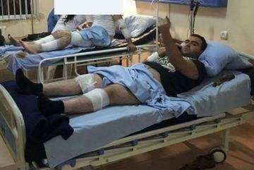 Yerevan, giornalista picchiato dalla polizia - Hetq_am.jpg