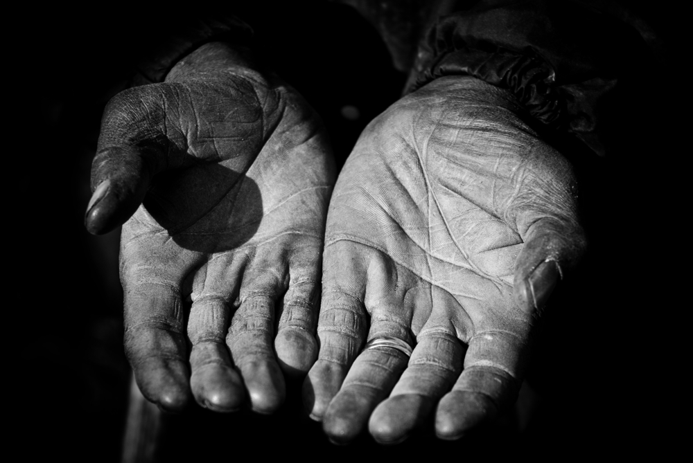 Mani di un anziano lavoratore agricolo (foto ©  Di Mark Strozier/Shutterstock)