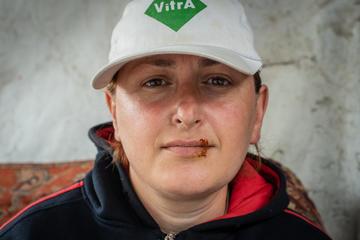 Alcuni cittadini di Shukruti si sono cuciti le labbra in segno di protesta contro l'indifferenza delle istituzioni